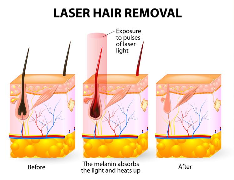 IPL – Dauerhafte Haarentfernung – Vorher und Nachher